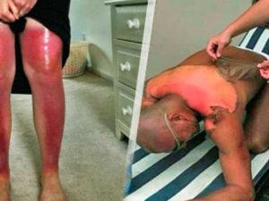 Photo of 18 personas estúpidas que no entendieron que las quemaduras solares podrían tener serias consecuencias.
