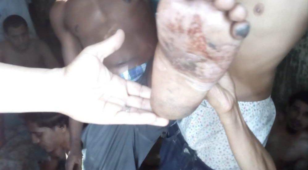 Photo of Reclusos de cárcel preventiva de Valverde denuncian viven en hacinamiento y con varios problemas de salud