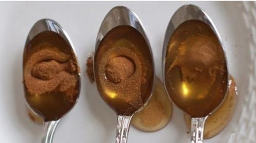 Photo of Doctores no se lo explican; Calienta canela con miel de esta forma y trata la vista, la artritis, vesícula, colesterol y ayuda a perder peso