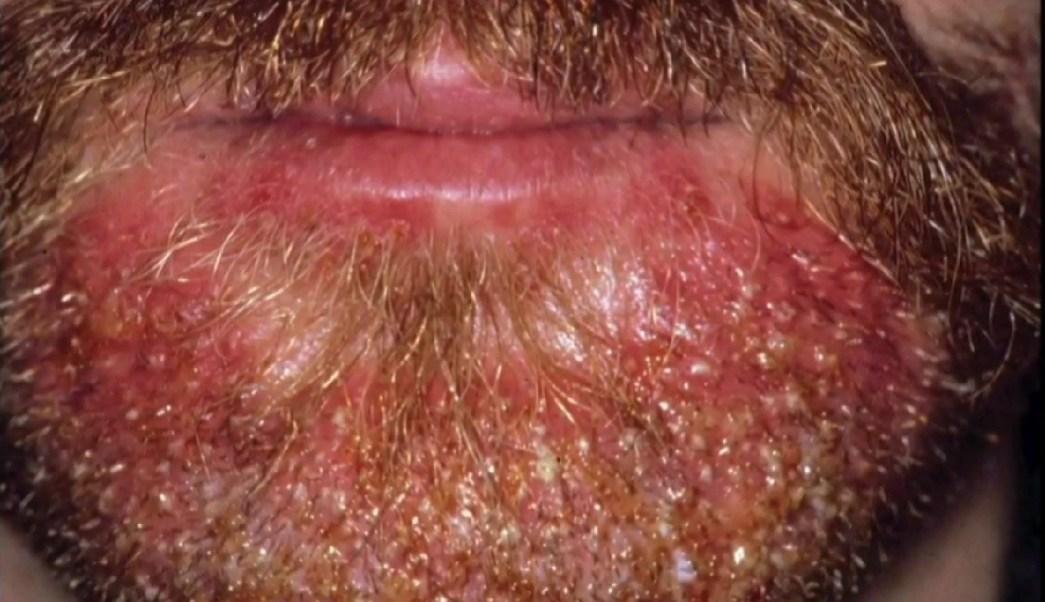 Photo of Barba abundante, una moda que podría concentrar microbios, parásitos y hasta piojos