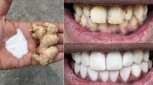 Photo of En solo dos minutos, los dientes blancos se blanquean y brillan como perlas, esta receta / tratamiento en casa