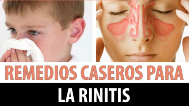 Photo of Remedios caseros para la rinitis alergicas